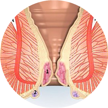 Лечение геморроя 2 стадии медикаментозное и народными средствами