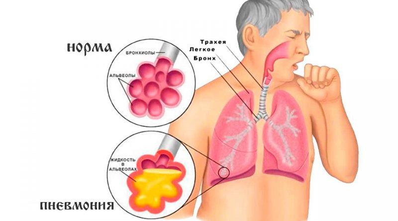Лечение прополисом цистита