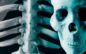 Свойства прополиса при лечении болезней костей