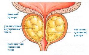 Масло прополиса применение в проктологии