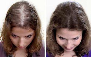 Прополис водный оживляет волосы