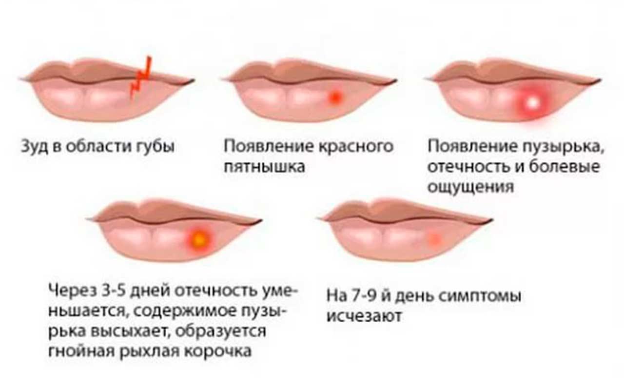 Лечение герпеса прополисом - схема герпеса на губе