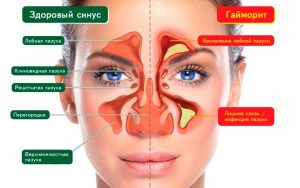 Лечение прополисом гайморита и отита