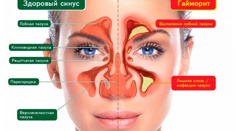 лечение носа прополисом