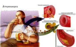 Лечение атеросклероза прополисом