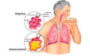 лечение прополисом пневмонии