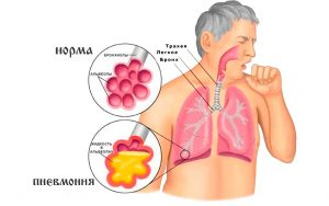 Прополис при язве желудка и при пневмонии
