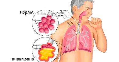прополис при пневмонии