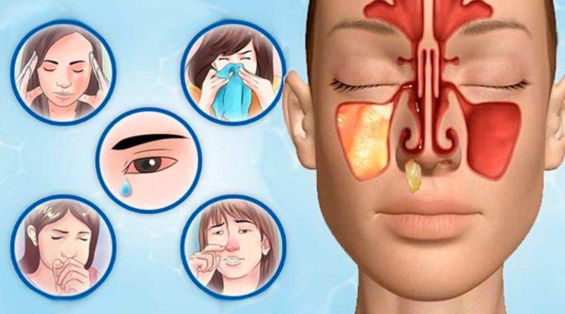 лечение гайморита прополисом